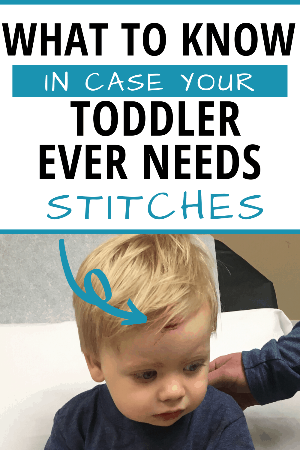 Head Injury Children: Quick Things to Know in the event your child has a fall that requires stitches! #injury #baby #toddler #child #stitches