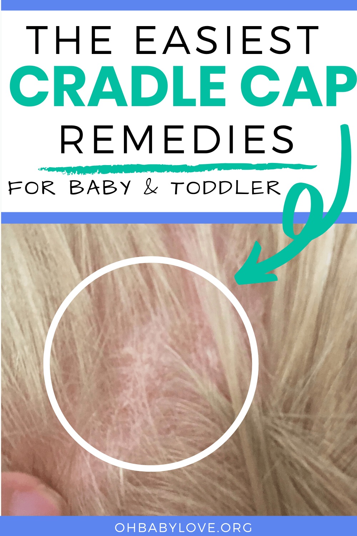 Cradle Cap Remedies Baby & Toddler: How to Get Rid of it for Good! #cradlecapremedies #howtogetridofcradlecap #getridofcradlecap